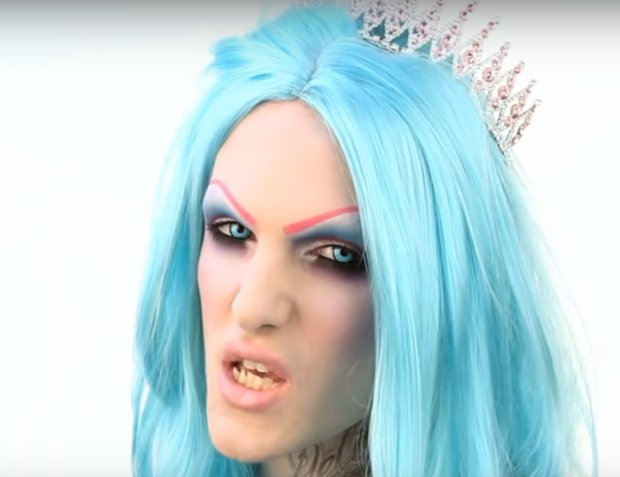 jeffree star with his old teeth